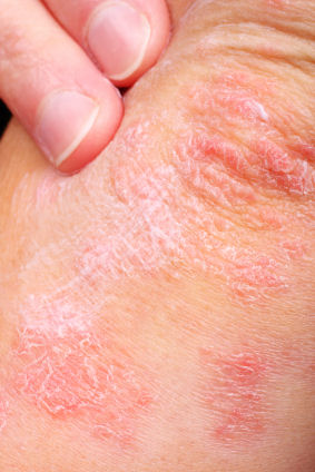 Plaque Psoriasis On the Elbow