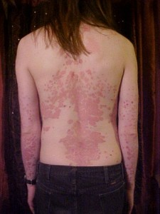 Psoriasis on the back image